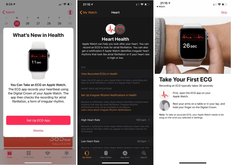 iOS 12.2 EKG Çekme Özelliği